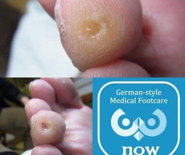 魚の目完治例、足の爪切り、分厚い爪(肥厚爪)、魚の目タコの訪問と文京区鍼灸院