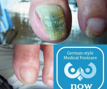 爪白癬の完治例、足の爪切り、分厚い爪(肥厚爪)、魚の目タコの訪問と文京区鍼灸院