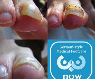 巻き爪矯正完治例、足の爪切り、分厚い爪(肥厚爪)、魚の目タコの訪問と文京区鍼灸院