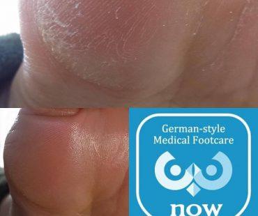 角質の症例  足の爪切り、分厚い爪(肥厚爪)、魚の目タコの訪問と文京区鍼灸院