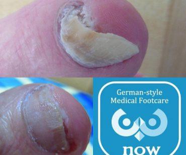 爪白癬(爪変形)の施術例、足の爪切り、分厚い爪(肥厚爪)、魚の目タコの訪問と文京区鍼灸院
