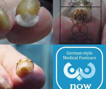 巻き爪施術例、足の爪切り、分厚い爪(肥厚爪)、魚の目タコの訪問と文京区鍼灸院
