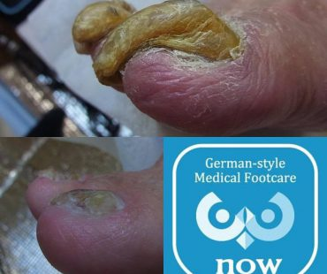爪白癬(肥厚爪)の施術例!足の爪切り、分厚い爪(肥厚爪)、魚の目タコの訪問と文京区鍼灸院