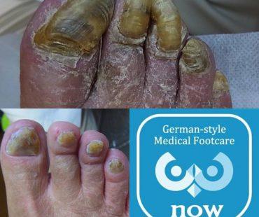 厚くなった爪!  足の爪切り、分厚い爪(肥厚爪)、魚の目タコの訪問と文京区鍼灸院