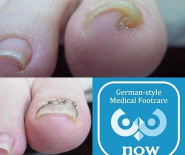 どんなに分厚い爪巻き爪も!足の爪切り、分厚い爪(肥厚爪)、魚の目タコの訪問と文京区鍼灸院