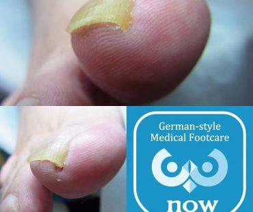 痛い陥入爪も!足の爪切り、分厚い爪(肥厚爪)、魚の目タコの訪問と文京区鍼灸院