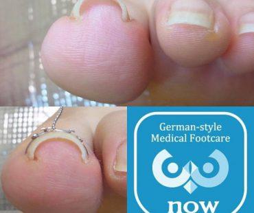巻き爪矯正施術例!足の爪切り、分厚い爪(肥厚爪)、魚の目タコの訪問と文京区鍼灸院