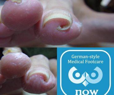 巻いて痛い巻き爪も!巻き爪、足の爪切り、分厚い爪(肥厚爪)、魚の目 タコ 角質の訪問 出張と文京区鍼灸院